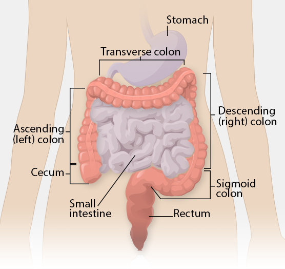 cancer colon transverse symptoms